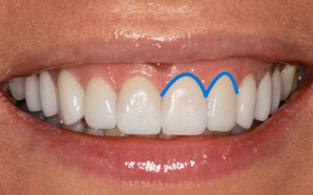 Crescent Shaped Gums