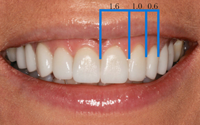 Correct tooth proportions