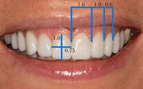 Tooth Proportion