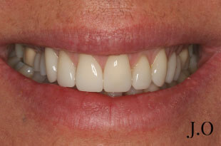Porcelain veneer treatment for worn smiles and chipped teeth - after photo