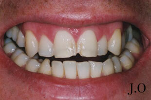 Veneers for chipped and worn smile - before photo