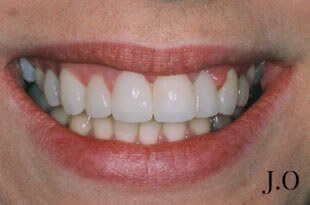 Crowded Teeth After Photograph