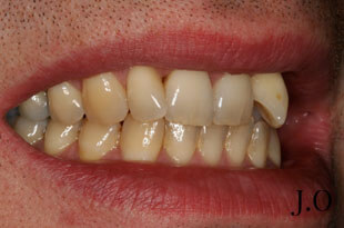 Crowded teeth - before photograph