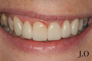 Gummy Smile - After Treatment Photograph