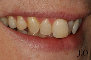 Gummy Smile - Before Treatment Photograph