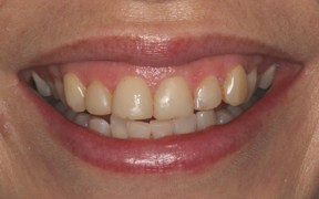 How much does a porcelain veneer cost uk