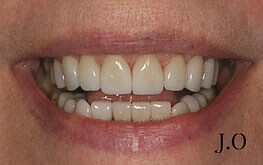 Smile Makeover - After Photo