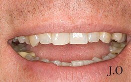 Smile Makeover - Before Photo